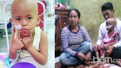 Photo of Keceriaan si Kecil Hanifah, Penderita Leukimia Terganas