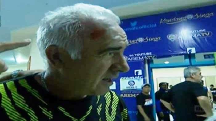 Mario Gomez Terluka