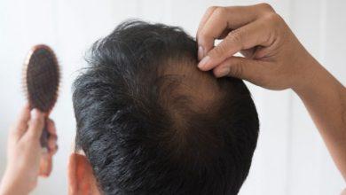 Photo of Peneliti: Rambut Rontok karena Sirkulasi Darah Terganggu