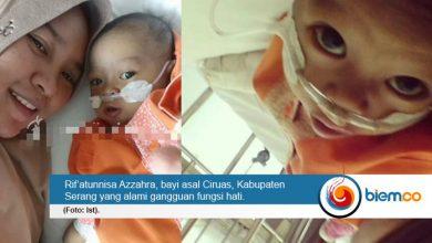 Photo of Bantu Biaya Pengobatan Rif'a, Bayi yang Alami Gangguan Fungsi Hati